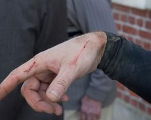 A mere scratch